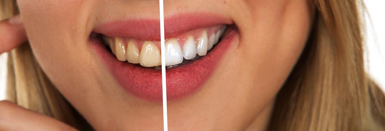 jak domowym sposobem wybielić zęby
